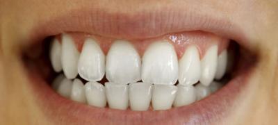 Kаkо da odstranite žute naslage na zubima pomoću jednog sastojka?
