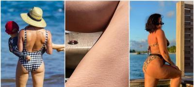 9 slavnih žena koje žele da naprave trend od nefotošopiranih fotki sa celulitom i strijama