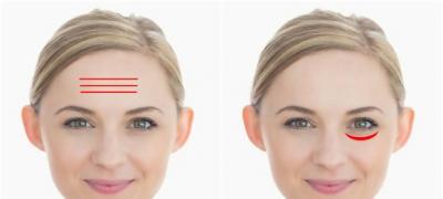 Šta bore i promene na licu govore o vašem zdravlju?