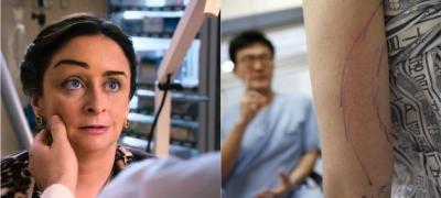 Kоje su najopasnije plastične operacije i šta može krenuti po zlu?