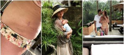 Krisi Tajgen pokazuje kako stvarno izgleda njeno telo posle rođenja dvoje dece (foto)