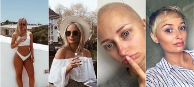 """Pismo jedne 22-godišnje devojke koja se bori sa rakom: """"Shvatite da je privilegija biti živ"""""""
