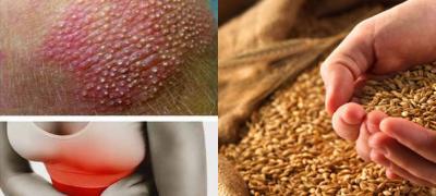9 znakova koji ukazuju na preosetljivost na gluten