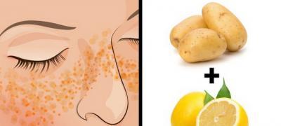 """""""Prazne priče"""" koje mogu biti korisne za ožiljke, akne i druge nedostatke na licu"""
